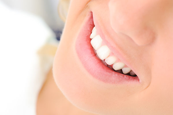 7 Factors You Should Know About Teeth Whitening