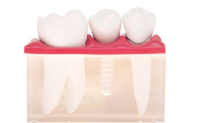 Dental Implants: What To Do To Ensure A Smooth Before and After Process